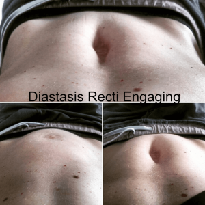 diastasis recti engaging
