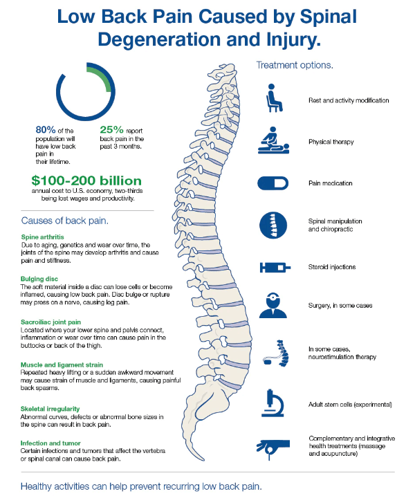 mayo clinic back pain