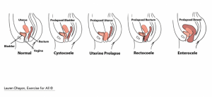 uterine prolapse to be